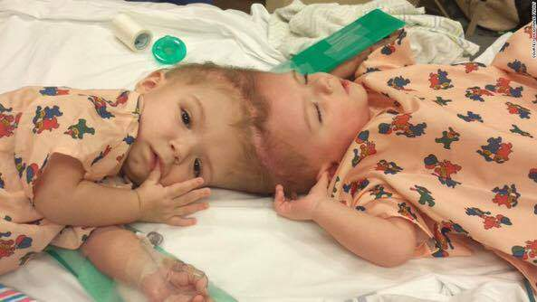 Conjoined twins to get separated by Hungarian doctors