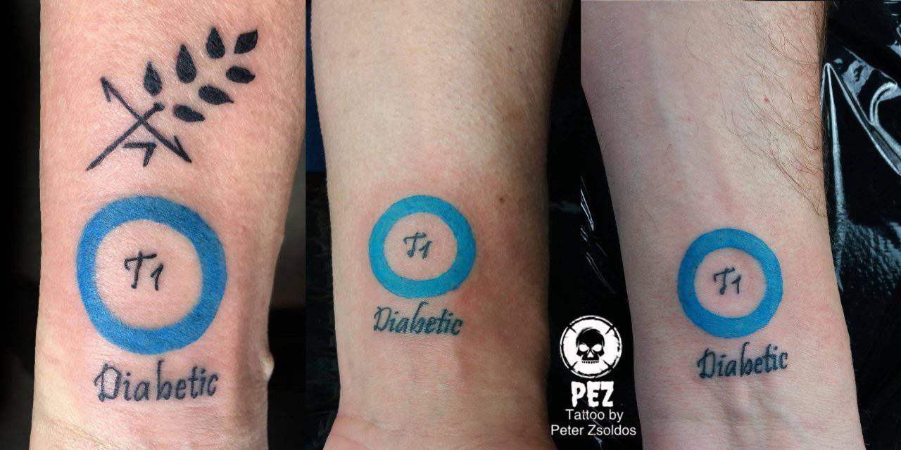 A creative Hungarian diabetes tattoo revolutionising global healthcare