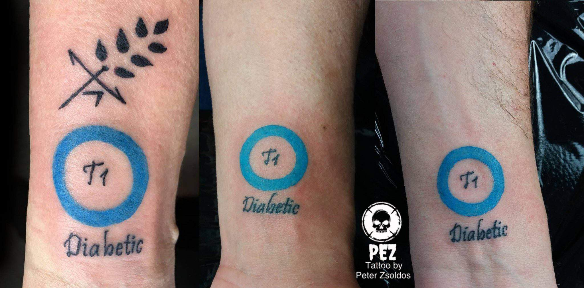A Creative Hungarian Diabetes Tattoo Revolutionising