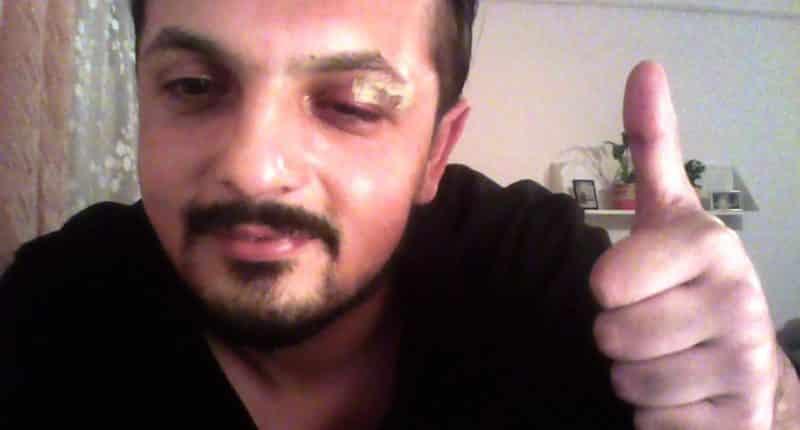 benjámin dániel rézműves attacked