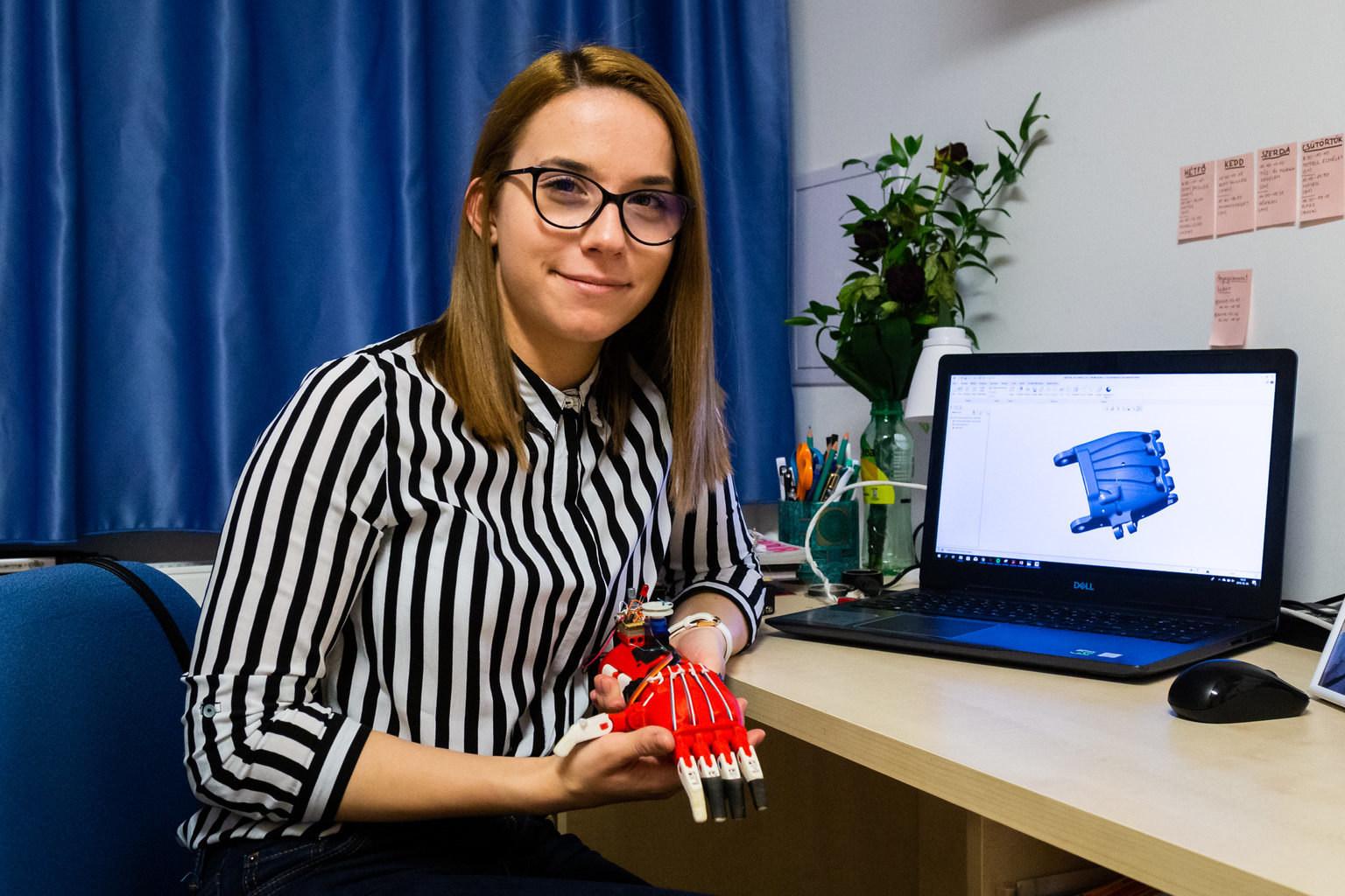 Vas Alexa Robotkar Prosthetics